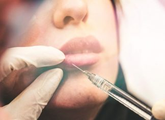 Hyaluronic Acid Injections - The Full Guide